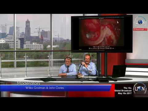 The 12th LION Global Broadcast Cholesteatoma Canal Wall Up Technique Andrzej Zarowski