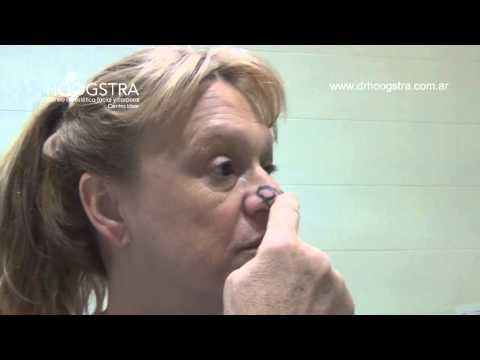 Rinoplastía - Bifurcación del cartílago del ala de la naríz (14114)