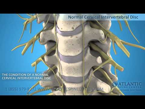 Cervical Herniated Disc Overview