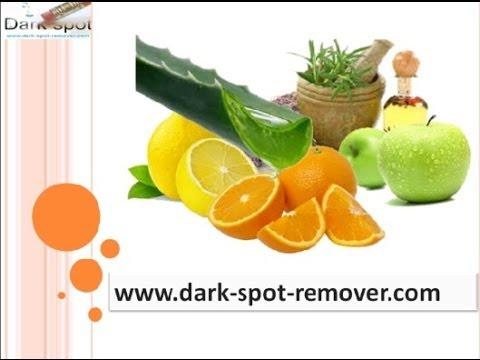 Homemade Recipe for dark Spot Remover - How to remove dark spots - YouTube