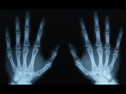 Checking if Your Finger Is Really Broken
