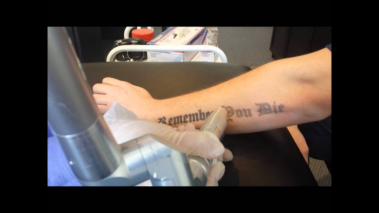 Laser tattoo removal forearm 2nd session youtube for How long is a tattoo removal session