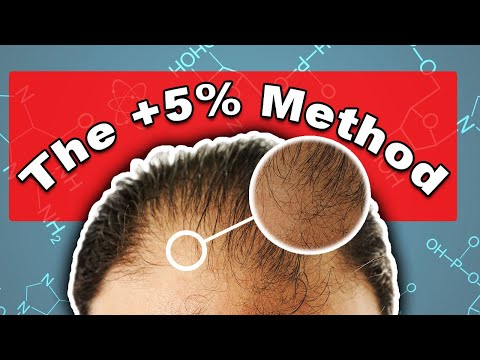 is-minoxidil-the-next-frontal-hairline-treatment?