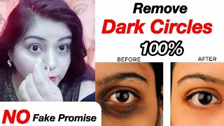 काले घेरे ग़ायब - How to Remove Dark Circles - DIY Under Eye Cream | JSuper kaur