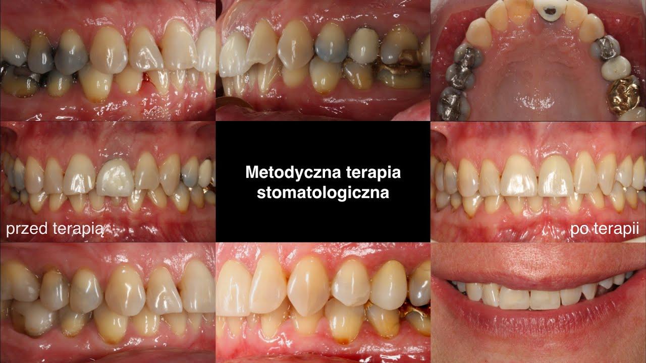 Ortodonta- leczenie ortodontyczne krok po kroku
