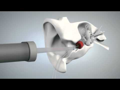Siemens - Eclipse Hearing Aid