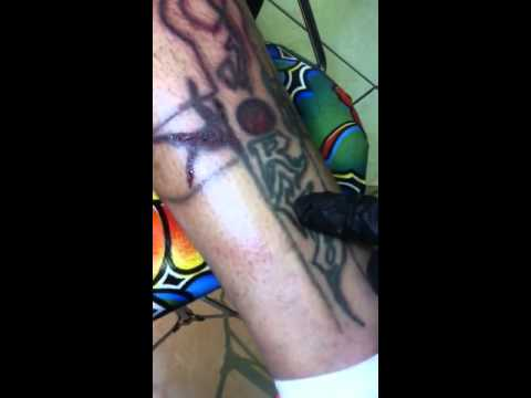 Tattoo Vanish tattoo removal procedure - YouTube