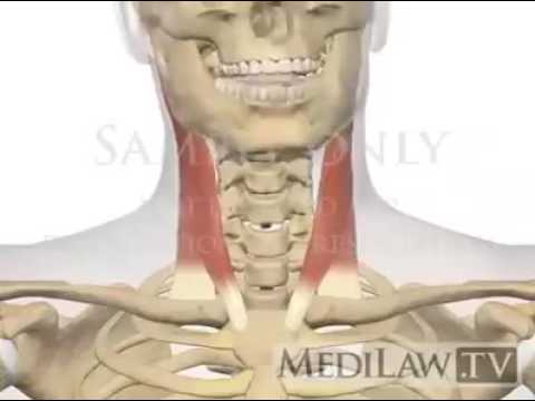 Function of Sternocleidomastoid (SCM) muscle. - YouTube