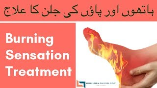 Burning Sensation: Causes and Treatment | Homeopathic Medicine for Burning Hands & Feet Urdu Hindi