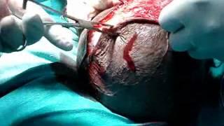 Repeat youtube video Neglected HYDROCELE   dr t varun raju 0001