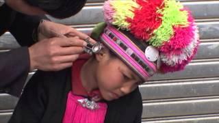ヤオ族少女の耳治療