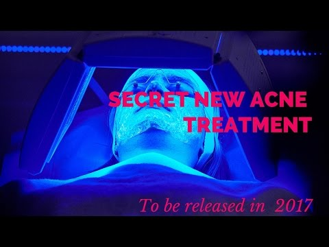 hqdefault - Acne Vulgaris Pictures Light Therapy Laser