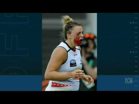 AFL Women players, Shame about the face...