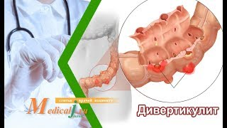 Дивертикулез и дивертикулит кишечника. Причины, симптомы, диагностика и лечение