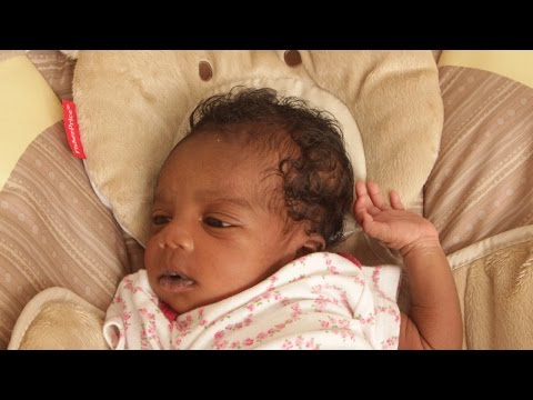 Managing Cradle Cap | Baby Hair Dandruff