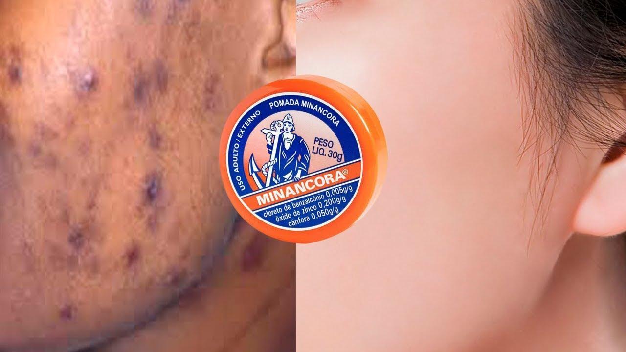 Minancora para marcas de acne