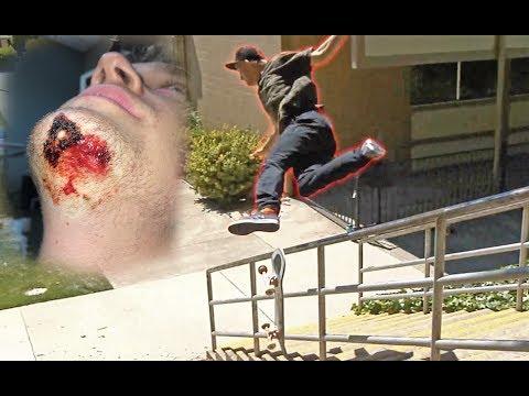 MY WORST SLAM EVER!! (broken elbow, wrist, 6 stitches, chipped tooth) | Garrett Ginner
