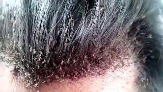 Video Kasus kutu rambut terburuk: terekam dalam sebuah video menjijikan - TomoNews download MP3, 3GP, MP4, WEBM, AVI, FLV Februari 2018