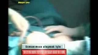Göğüs Estetiği Ameliyatı Op.Dr.Fatih Dağdelen
