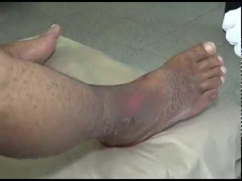 diabetes diabética dedos de los pies necróticos