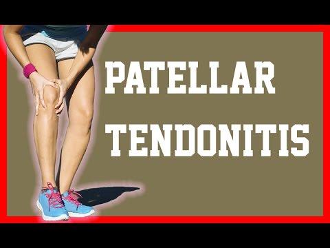 patellar-tendonitis-ultrasound-iontophoresis---patellar-tendonitis---neobracex