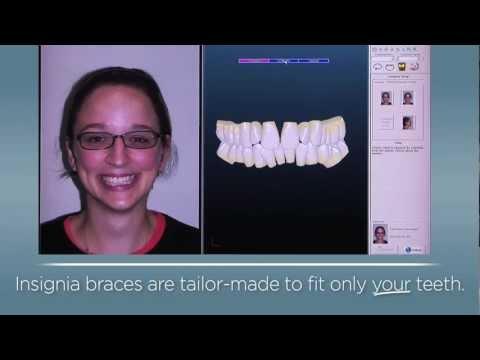 Insignia Custom Braces at DiCiccio Orthodontics