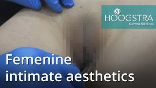 Femenine intimate aesthetics (20125)