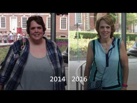 Sharon describes her lifelong struggle with orthopedic issues resulting from her weight.