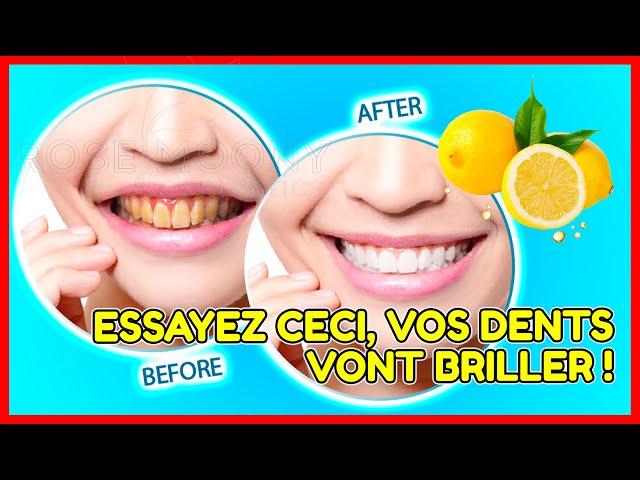 En 5 minutes - Changez les dents jaunes en blanc nacré: blanchir les dents à la maison (100% rapide)