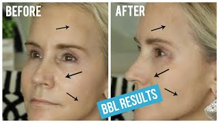 In this video i take you through my bbl treatment and show results. the is designed to address excess facial hair, broken capillarie...