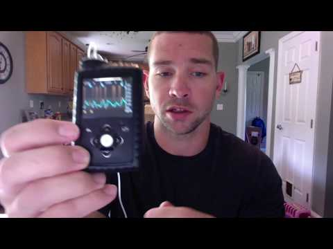 Medtronic 670g Review In Manual Mode