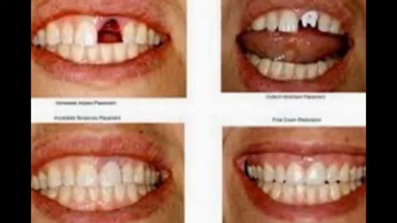 Implant Gigi di Manado - YouTube f9a7cc472c