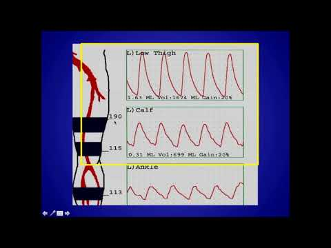 How to Perform and Interpret Peripheral Arterial Doppler Examinations
