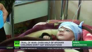 Children of War: 50%+ Afghan kids starving