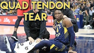 Doctor Reviews Victor Oladipo Injury | Quad Tendon Rupture
