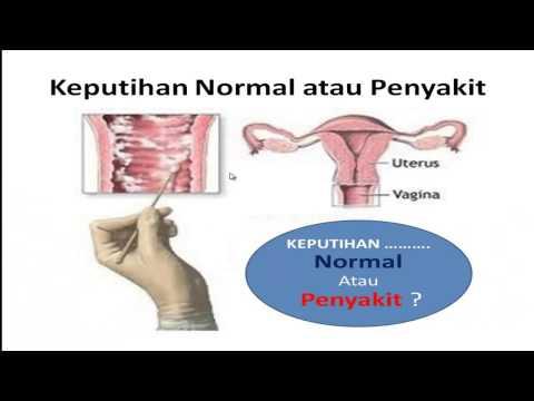 Darah Manis, Bagaimana Mengatasinya? #askdoctor ZAP dr.Resty prurigo part 2 from YouTube · Duration:  1 minutes 28 seconds