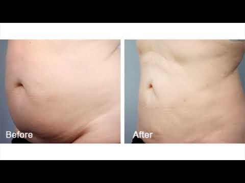 Los Angeles Liposuction Centers - Plastic Surgeon Beverly Hills, CA