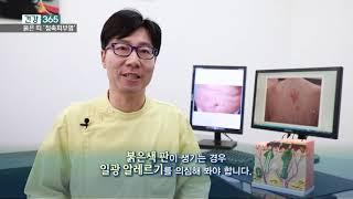 가렵고, 붉은 띠가 생긴다면? '접촉피부염…