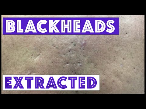 Were These Blackheads & Cysts From Agent Orange Exposure?