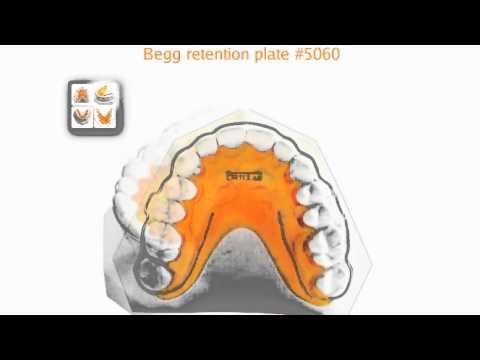 Begg retainer  YouTube