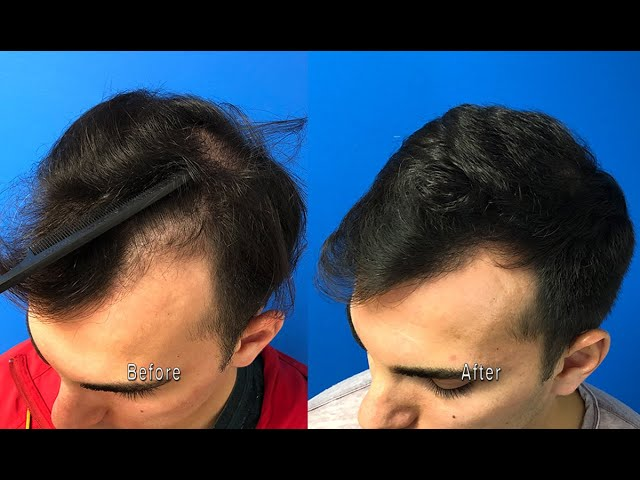 Follicular Unit Extraction FUE Hair Transplant   CT
