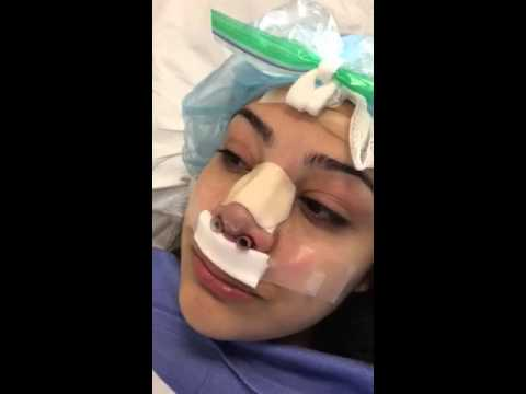 Sabrina Breathes Easily Right After Her Rhinoplasty Surgery!