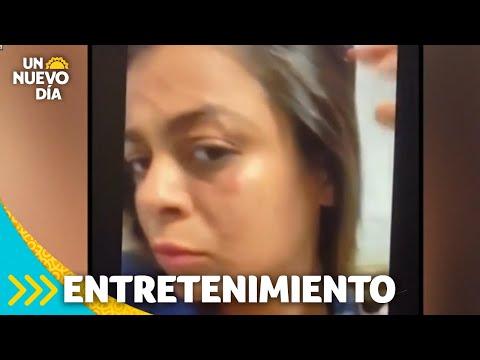 Frida Sofía: así quedó el rostro de la vecina que la acusa de agresión    Un Nuevo Día   Telemundo