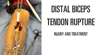 Distal biceps tendon rupture: Mechanism of injury and treatment