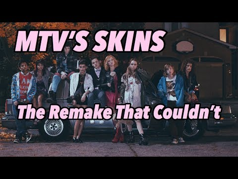 """The Remake That Couldn't: Skins """"U.S."""""""