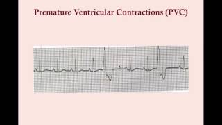 Premature Contractions and Excitations - CRASH! Medical Review Series