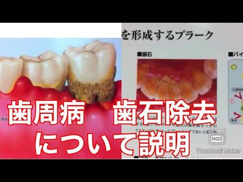 歯周病 治療方法歯石クリーニング 歯茎 腫れた膿 噛めない 痛い説明動画 2 大宮鈴木歯科医院 歯医者デンタル歯科クリニック