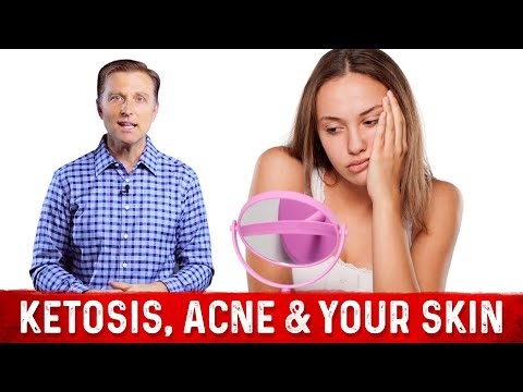 ketosis,-acne-&-your-skin