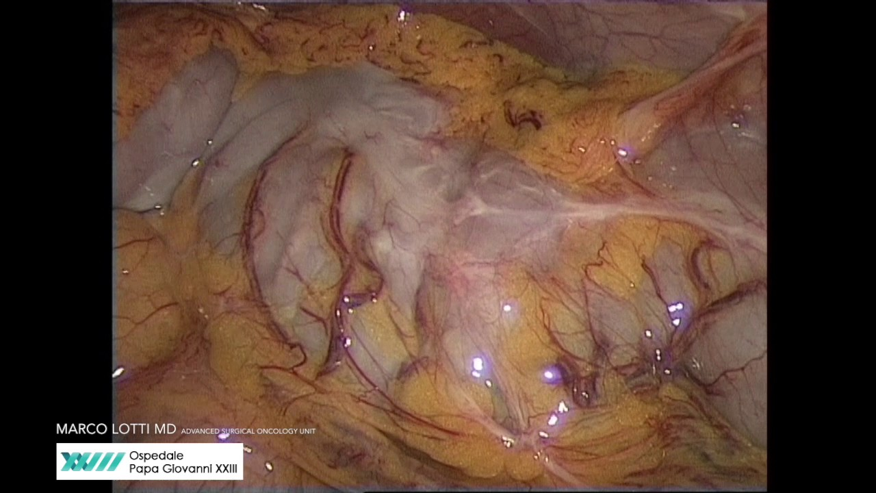 ANATOMY IN RELATION TO LEFT COLECTOMY - YouTube