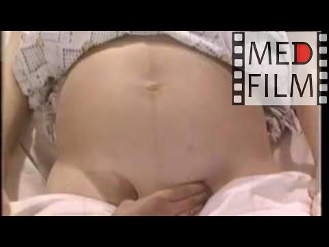 Диагностика тазового и головного предлежания плода © Diagnosis of breech and head fetal position